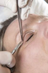 Blefaroplastyka plastyka gornych powiek