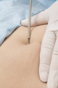 Liposukcja laserowa i lipotransfer