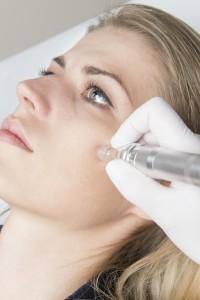 Mezoterapia osoczem bogatoplytkowym